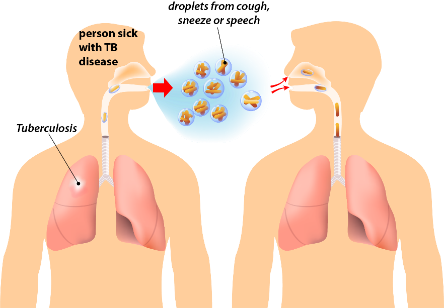 Tuberculosis (TB) Disease – Prince William Health District